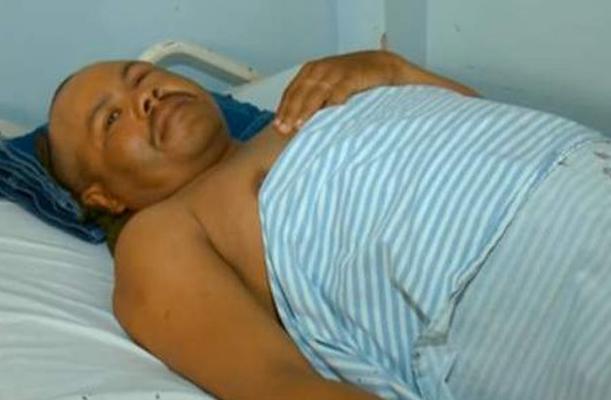 Nunes Setelah Pisau Berhasil Dicabut Dari Kepalanya